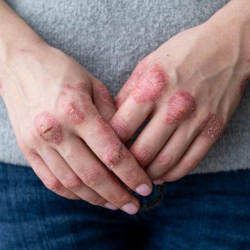 psoriasi - artrite psoriasica - diagnosi psoriasi