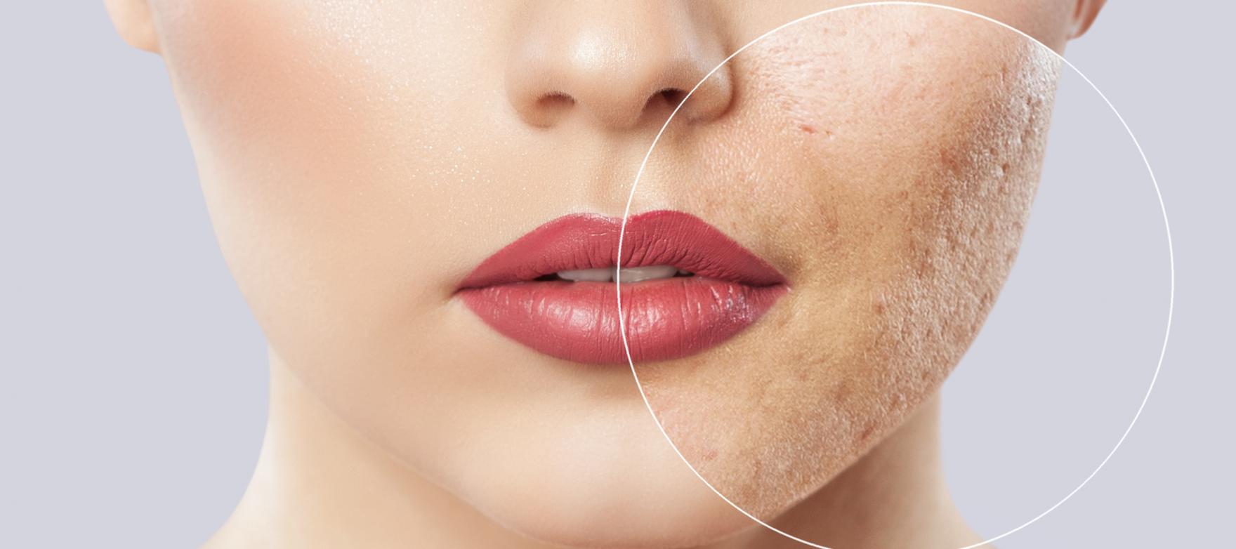 cura cicatrici da acne dermatologa deluzio bari rutigliano