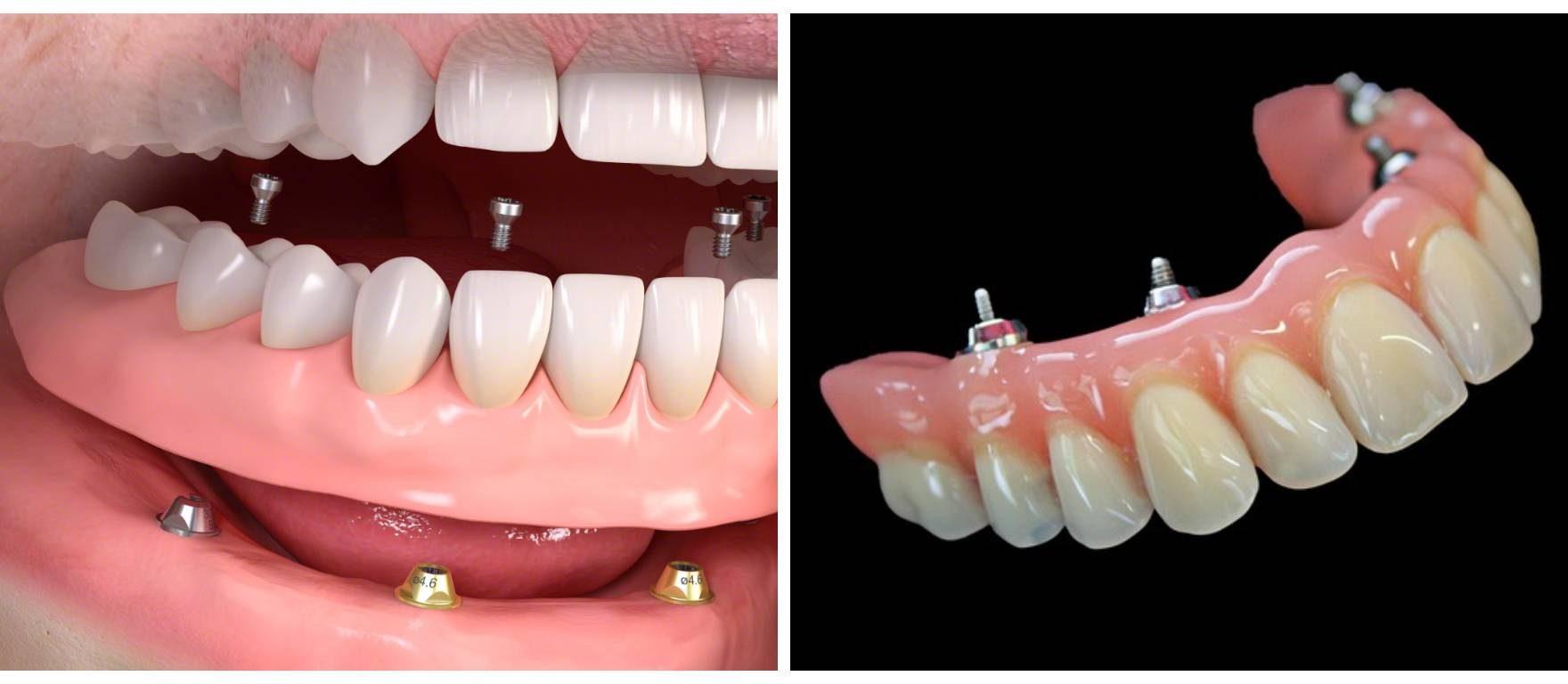 impianto all on four deluzio dentista bari dentista rutigliano